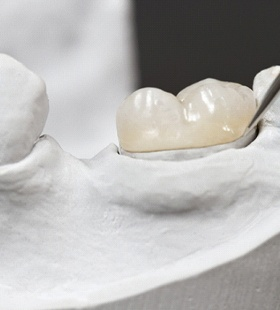 An up-close image of a dental professional placing a customized dental crown onto a mouth mold
